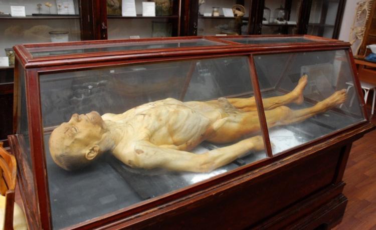 Экспонат музея анатомии